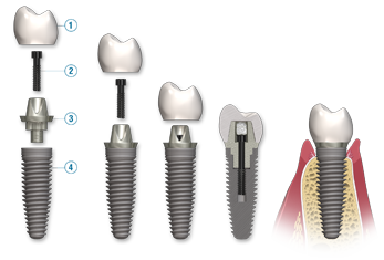 dental-implant-breakdown