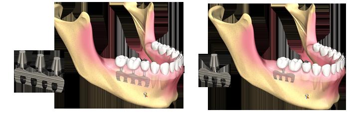 impianti dentali a lama