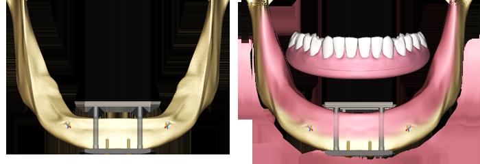 trans-osseous-dental-implant